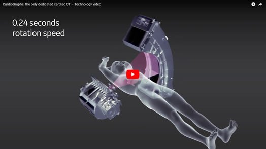 Cardiograph is the only dedicated cardiac CT - Technology Video